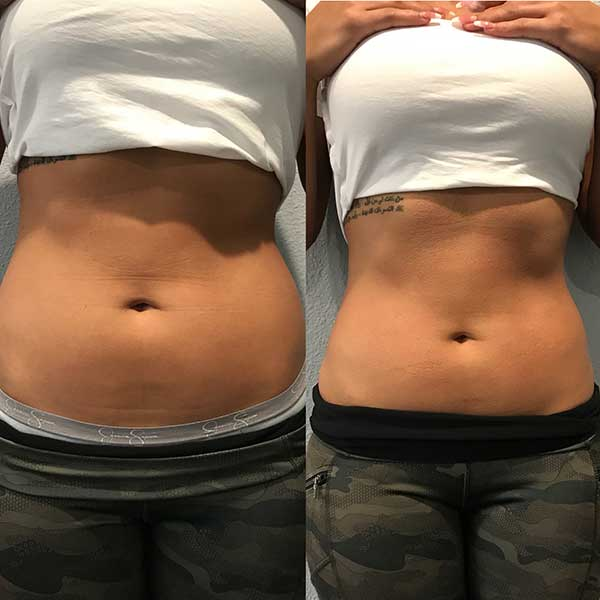 Before and after slimming session